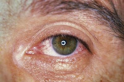 Tracoma, la ceguera de los pobres que amenaza a 200 millones de personas