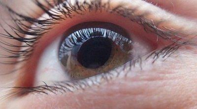 Glaucoma, un ladrón sigiloso