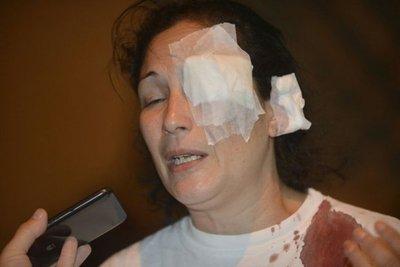 Policía también hirió a dos mujeres en el PLRA