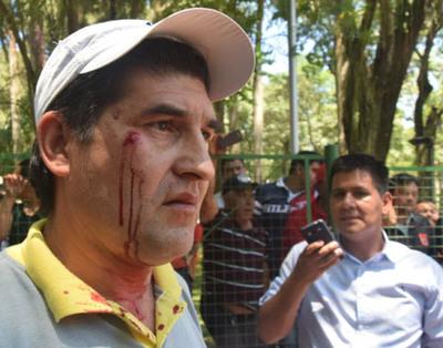 Al menos 7 heridos tras incidente en la comuna