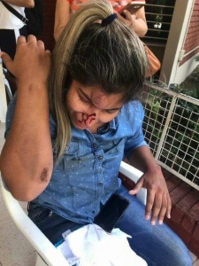 Imputan por intento de feminicidio a hombre que atropelló a su expareja
