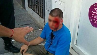 Se hizo pasar por su hija de 11 años y golpeó a su acosador