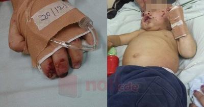 Niño torturado: Hogar Las Tías pedirá la guarda del menor