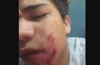 Mili Brítez sufre brutal ataque de su perro