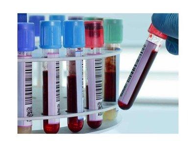 Un test sanguíneo permite conocer reloj interno de pacientes en hora y media
