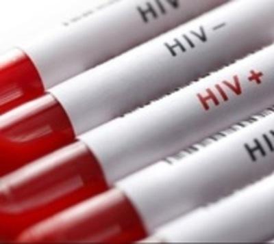 Solicitan educación sexual para detener aumento de VIH en jóvenes