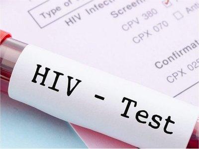 Logran eliminar el VIH en pacientes con el trasplante de células madre