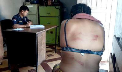 Adolescentes de 14 y 16 años agredidas con manguera por su madre y padrastro