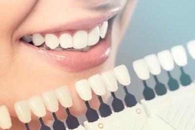 Estética dental auge total en el país
