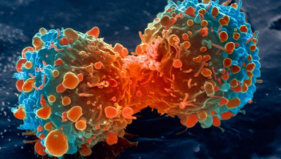 Descubren nuevos vínculos sobre por qué la obesidad impide combatir el cáncer