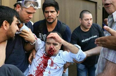 Anulan condena de policía que disparó en el rostro a diputado Édgar Acosta