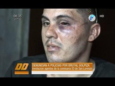 Joven denuncia haber sido brutalmente agredido por la policía