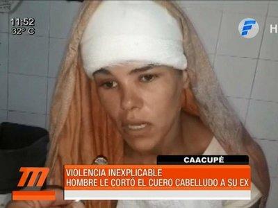 Un hombre le cortó el cuero cabelludo a su ex