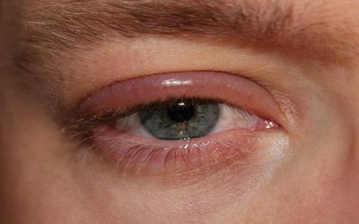 Instan a cuidar los ojos en verano