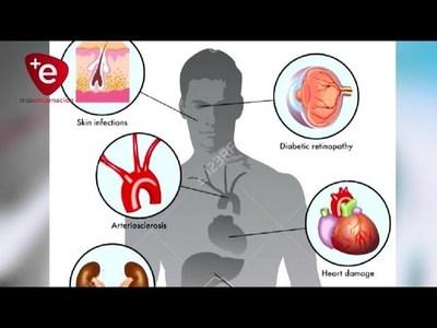 Hipoglucemia, gravedad y cómo intervenir en situaciones de emergencias.
