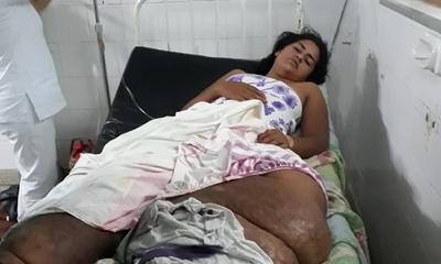 Joven quien sufre de elefantiasis apela a la solidaridad ciudadana – Prensa 5