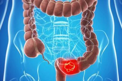 Cáncer de colon: controles de rutina son fundamentales, indica especialista