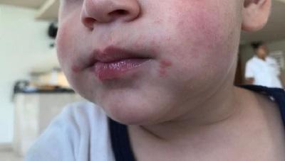 Advierten sobre enfermedad de manos, pies y boca, contagiosa y frecuente en niños pequeños
