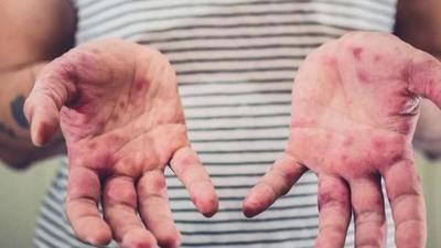 Suman casos de sarampión en EEUU por brote en Nueva York