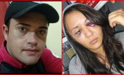 Mujer fue golpeada brutalmente por su pareja