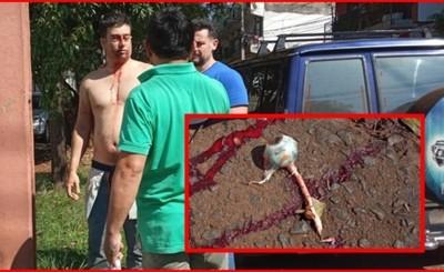 Brasileño se arrancó los ojos e intentó arrancarse los genitales