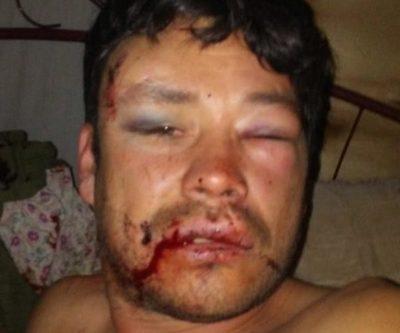 Dos jóvenes casi matan a  golpes a un padre de familia