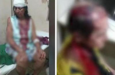 Un mujer denuncia a su hermano por agresión a sus padres en Villarrica