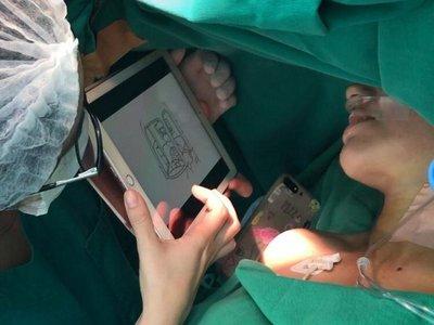 Adaptan al guaraní técnica  aplicada en cirugía con pacientes despiertos