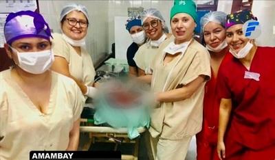 Extirpan tumor de nueve kilos de una mujer durante parto