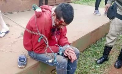Motochorro detenido tras ser linchado por vecinos