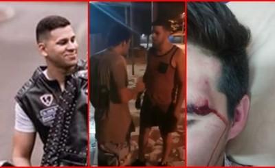 Joven es brutalmente agredido en Pdte. Franco