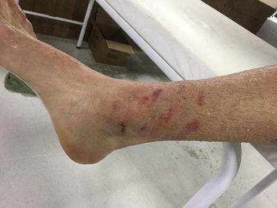 Terrible: así quedó la pierna de Gómez