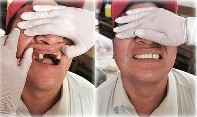 Chaqueños reciben prótesis y lucen nuevas sonrisas