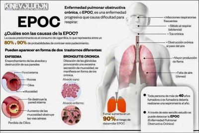 Médicos del Hospital Regional de CDE realizarán pruebas por medio de la espirometría