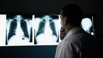 Realizarán evaluaciones y espirometrías gratuitas en el Hospital de Clínicas