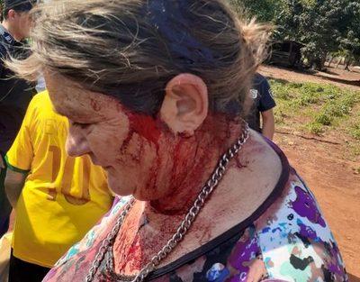 Hombre en estado etílico agrede brutalmente a su hermana