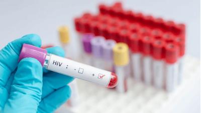 En Paraguay el 53% de los diagnosticados con VIH son adolescentes y jóvenes