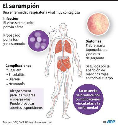 """El sarampión  acecha por """"fracaso""""  en vacunación"""