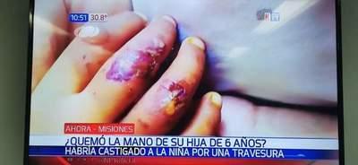 Misiones; prisión preventiva para madre que quemó la mano de su hija