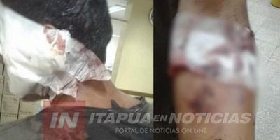AMIGOS DE TRAGOS DISCUTIERON Y UNO FUE A PARAR AL HOSPITAL.