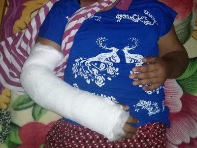 Mujer queda hospitalizada tras brutal agresión de su pareja