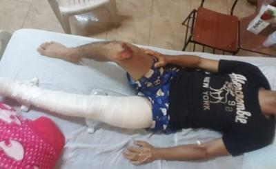Llamativo procedimiento de Linces termina con un joven fracturado