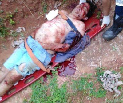 Presunto delincuente queda gravemente herido tras enfrentamiento con Policía