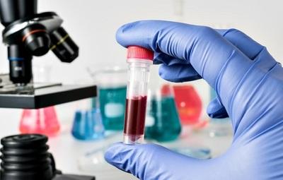 Argentina probará la eficacia de una vacuna contra el VIH