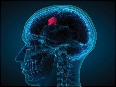 La ciencia abre nueva vía contra tumores cerebrales más agresivos