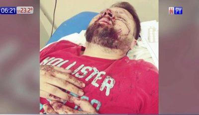 Turba de motociclistas ataca a conductor en San Antonio