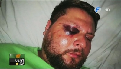 Turba de motociclistas casi mató a golpes a un conductor [VÍDEO]