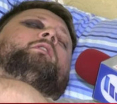 Habla víctima que fue atacada por una turba de motociclistas