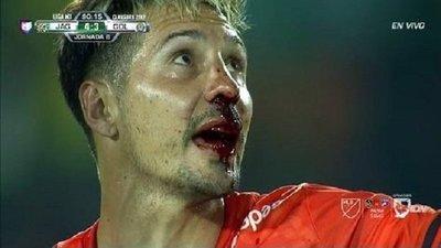 Jonathan Fabbro sufre fractura de nariz por codazo en México (Vídeo)