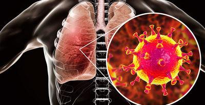 Fiebre, tos y dificultad para respirar, son signos y síntomas del coronavirus